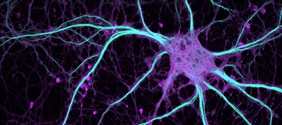 serotonina può causare l'eiaculazione precoce